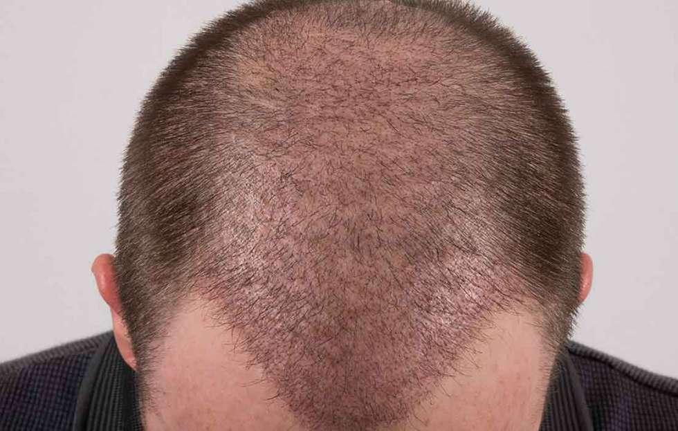 بعد زراعة الشعر بشهر