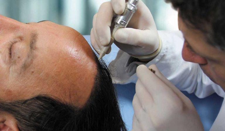 زراعة الشعر الصناعي