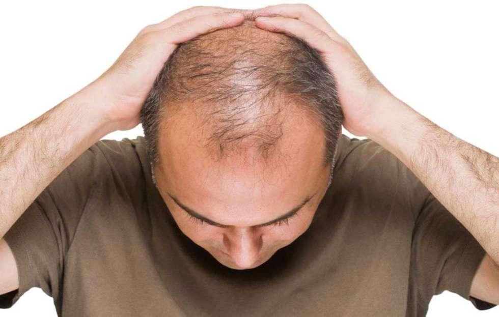 زراعة الشعر بالشريحة
