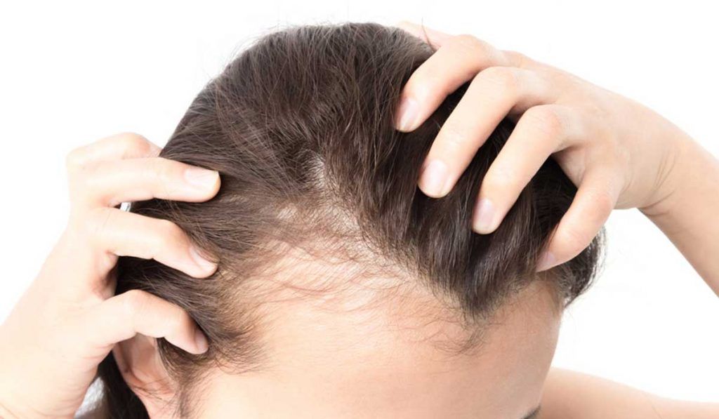 زراعة الشعر للنساء