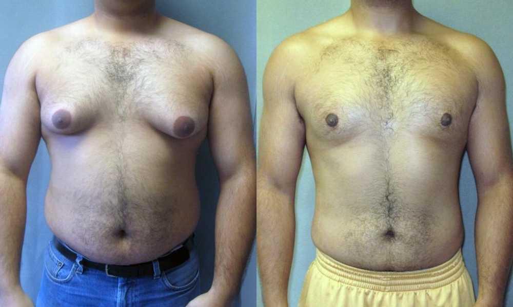 اختلاف حجم الثديين عند الرجال
