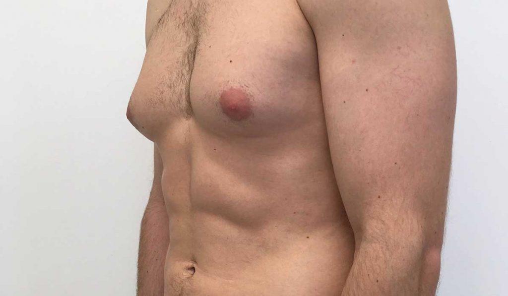 اسباب التثدي عند الرجال