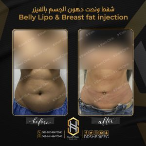 مساج بعد عملية شفط الدهون