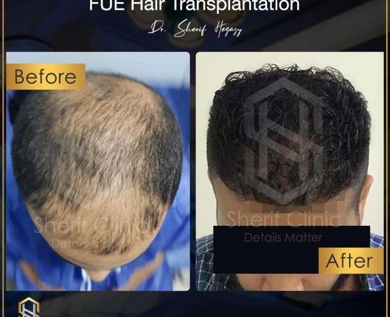 زراعة الشعر الطبيعي