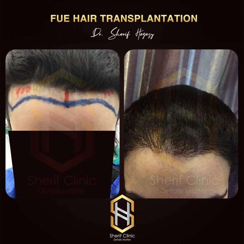 زراعة الشعر الطبيعي للسيدات