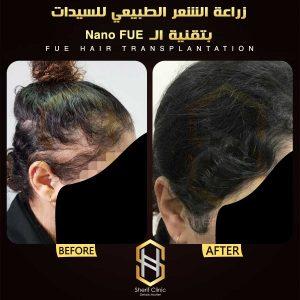 زرع الشعر بدون جراحة