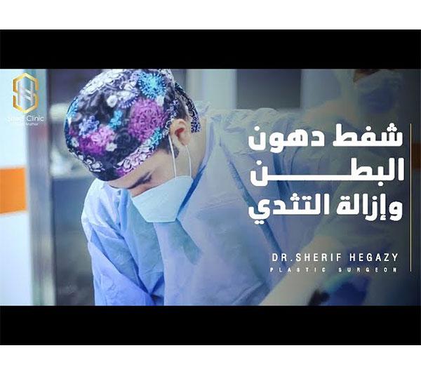 شفط البطن وإزالة التثدي| د.شريف حجازي
