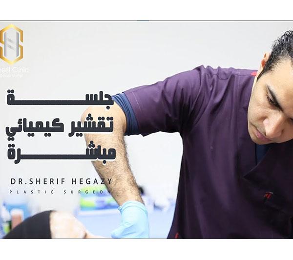 خطوات جلسة تقشير البشرة الكيميائي | د.شريف حجازي