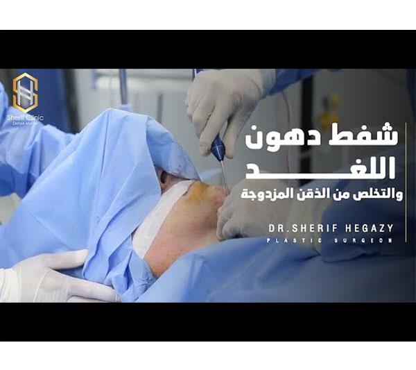 شفط دهون اللغد والتخلص من الذقن المزدوجة | د.شريف حجازي